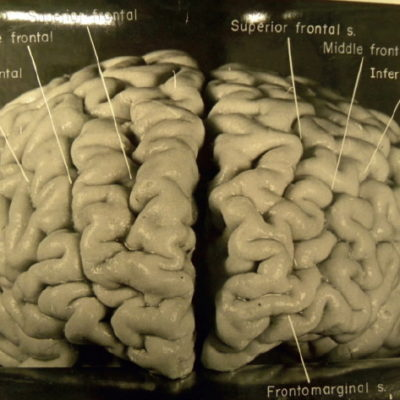 Albert Einstein: ¿Cómo es en realidad el cerebro de un genio?