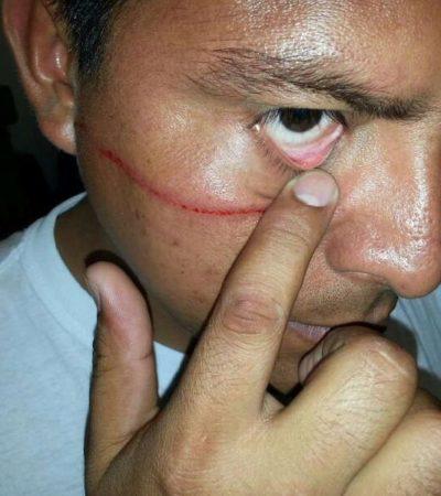 Par de hermanos en estado de ebriedad agreden a policías de tránsito durante el alcoholímetro