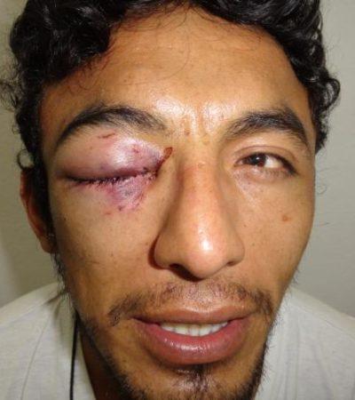 Denuncian presunto caso de brutalidad policiaca en Cozumel