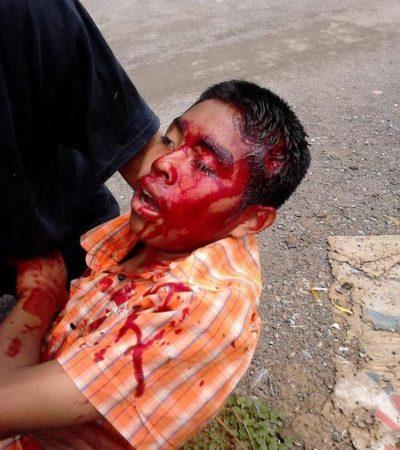 SANGRE DE INOCENTE EN PUEBLA: Fallece el niño herido con bala de goma durante represión avalada por 'Ley Bala'