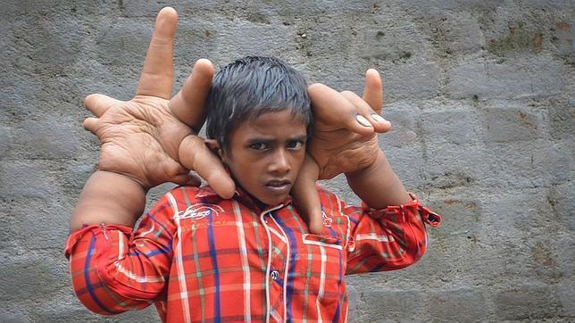 Desconcierta a los médicos un niño indio con manos gigantes