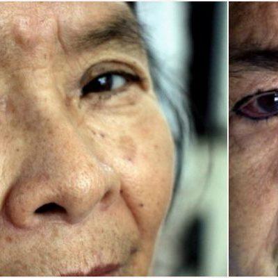 OFRECEN LLEVAR A ANCIANITOS AL DF: Infectados durante operaciones de la vista, los abuelitos recibirían ayuda de especialistas en la capital