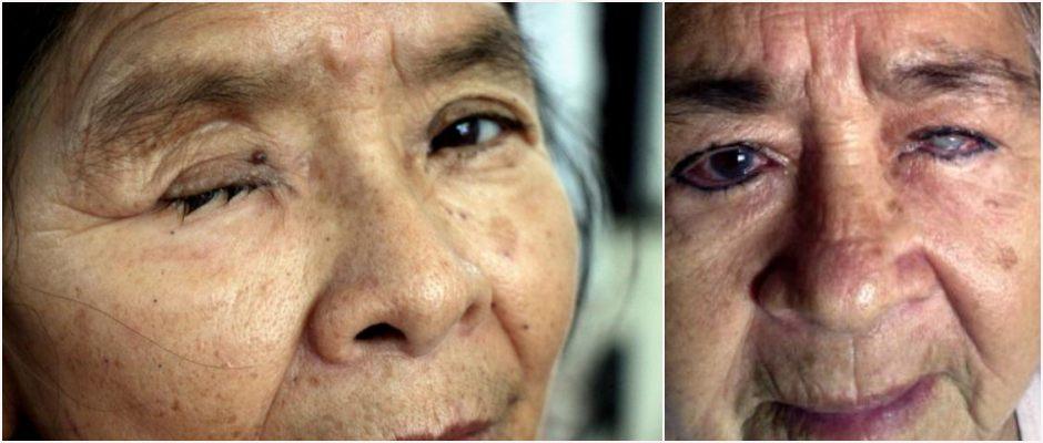 Ante escándalo de negligencia médica, Sesa accede a atender a abuelitos que quedaron ciegos en clínica privada