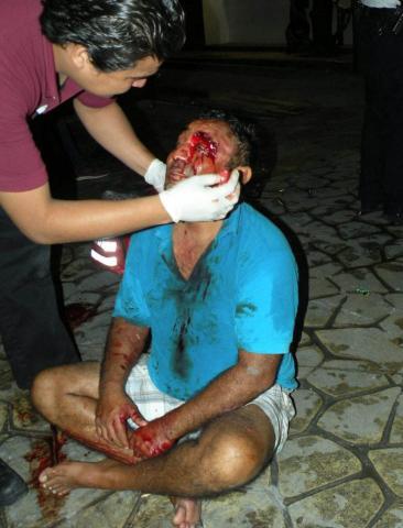 OTRO ESCÁNDALO POR LA QUINTA: Meseros dan paliza a 3 clientes de bar en zona turística de Playa del Carmen