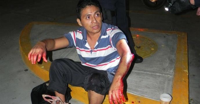 INSEGURIDAD EN PLAYA: Por resistirse a un asalto, dan machetazo a joven a un costado del Palacio Municipal de Solidaridad