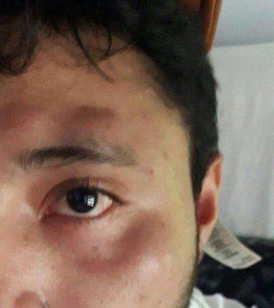 Denuncia alumno de la UT agresión del dueño del refugio 'Tierra de Animales' en Cancún por pisar accidentalmente a un gato
