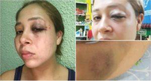 Da licencia Congreso de Chiapas a edil de Pijijiapan por golpear a su esposa; Fiscalía pedía desafuero