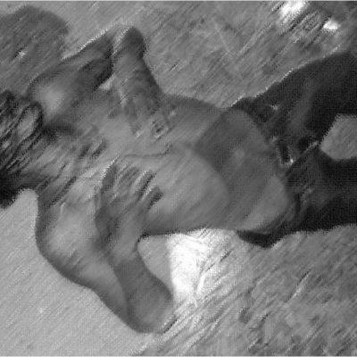 Deja riña entre presuntos 'maras' rivales un muerto y un herido al que le amputaron los dedos