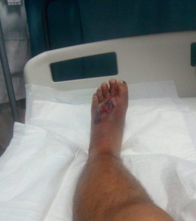 Derechohabiente del IMSS en Cancún denuncia que está a punto de perder el pie, por supuesta negligencia médica