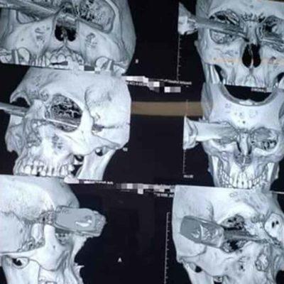 FOTOS | Le clavan sendo cuchillo en el ojo por disputar un cajón de estacionamiento en Veracruz