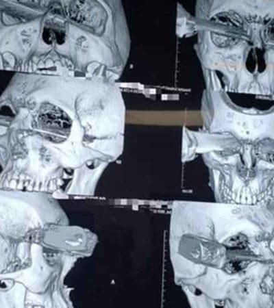 FOTOS   Le clavan sendo cuchillo en el ojo por disputar un cajón de estacionamiento en Veracruz