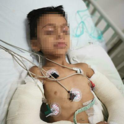 SEGUIMIENTO | Permanece hospitalizado el menor golpeado por su padre en Cancún
