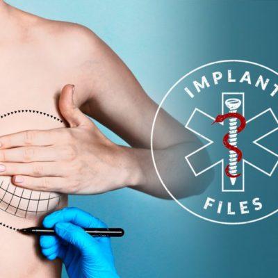 Tras investigación periodística, ordena Cofepris retirar implantes mamarios por riesgo de cáncer