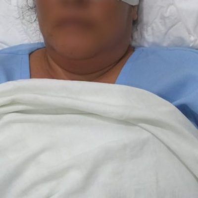 DAÑO COLATERAL DE LA NAVIDAD: Mujer pierde un ojo por la explosión de un petardo en la comunidad de Xcalak