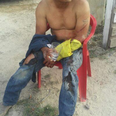 Discusión entre parientes termina a machetazos en la Región 243 de Cancún
